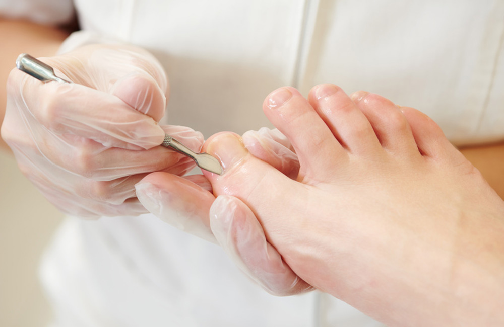 Nagelbehandlung am Fuß